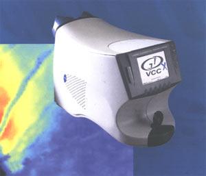 Сканирующая лазерная поляриметрия для оценки состояния слоя нервных волокон сетчатки