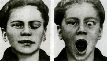 Синдром Маркуса-Гунна